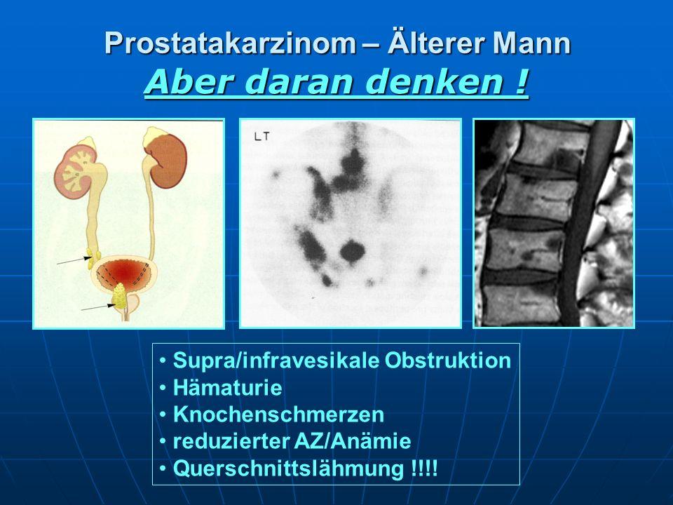 Prostatakarzinom – Älterer Mann Aber daran denken ! Supra/infravesikale Obstruktion Hämaturie Knochenschmerzen reduzierter AZ/Anämie Querschnittslähmu