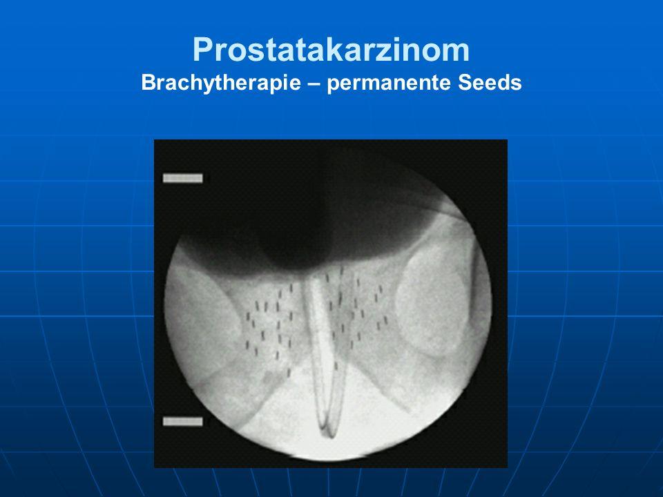 Prostatakarzinom Brachytherapie – permanente Seeds