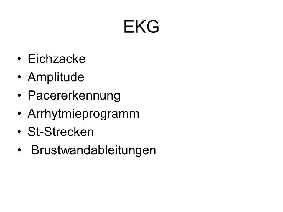 EKG Eichzacke Amplitude Pacererkennung Arrhytmieprogramm St-Strecken Brustwandableitungen