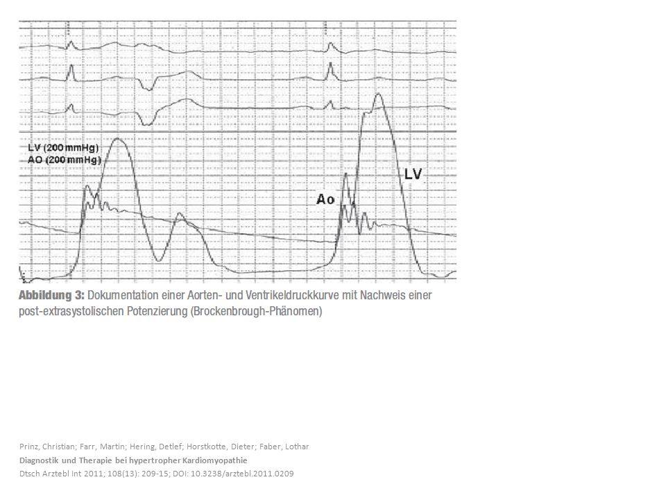 Prinz, Christian; Farr, Martin; Hering, Detlef; Horstkotte, Dieter; Faber, Lothar Diagnostik und Therapie bei hypertropher Kardiomyopathie Dtsch Arzte