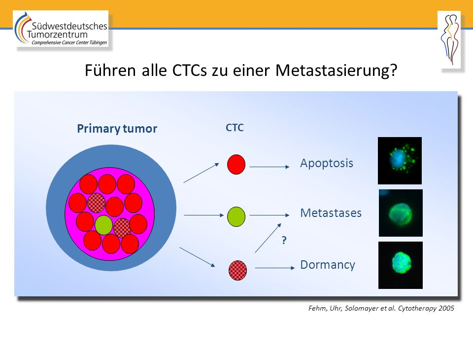 Metastases Apoptosis Dormancy CTC Primary tumor ? Führen alle CTCs zu einer Metastasierung? Fehm, Uhr, Solomayer et al. Cytotherapy 2005