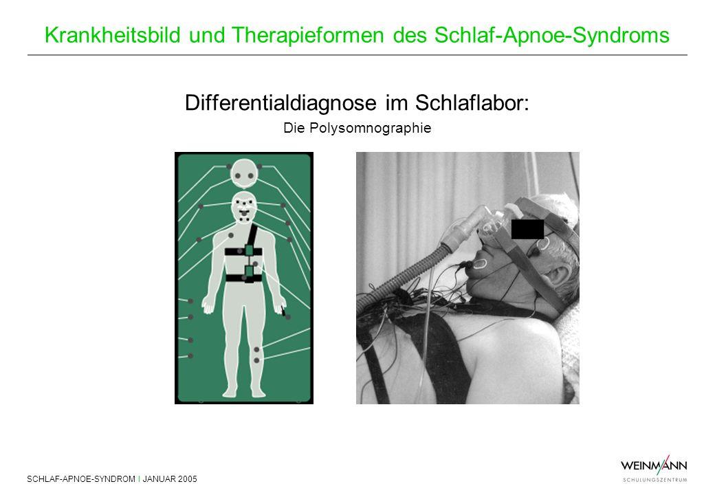 SCHLAF-APNOE-SYNDROM I JANUAR 2005 Krankheitsbild und Therapieformen des Schlaf-Apnoe-Syndroms Differentialdiagnose im Schlaflabor: Die Polysomnograph