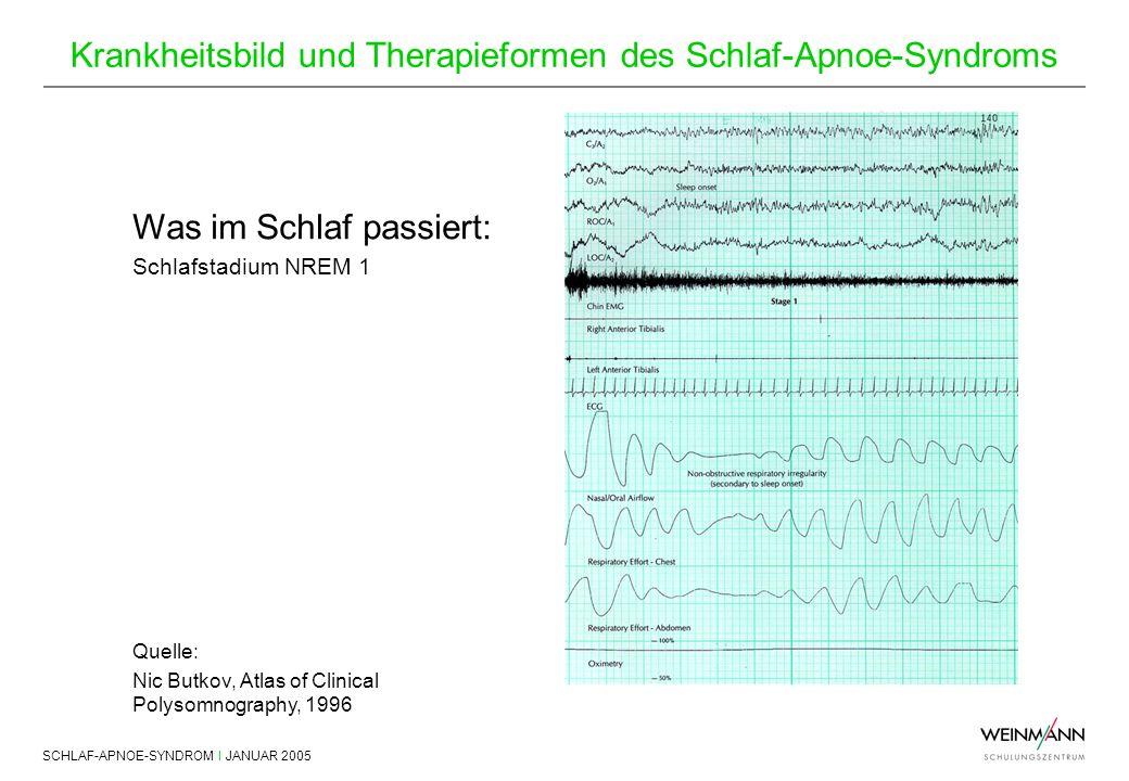SCHLAF-APNOE-SYNDROM I JANUAR 2005 Krankheitsbild und Therapieformen des Schlaf-Apnoe-Syndroms Was im Schlaf passiert: Schlafstadium NREM 1 Quelle: Ni