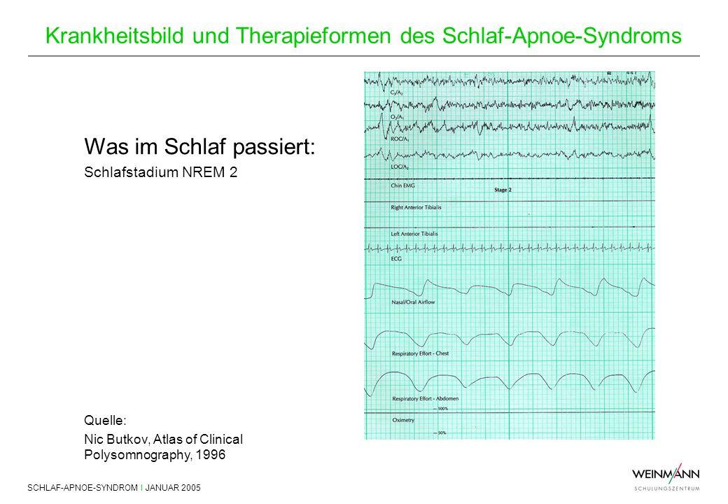 SCHLAF-APNOE-SYNDROM I JANUAR 2005 Krankheitsbild und Therapieformen des Schlaf-Apnoe-Syndroms Was im Schlaf passiert: Schlafstadium NREM 2 Quelle: Ni