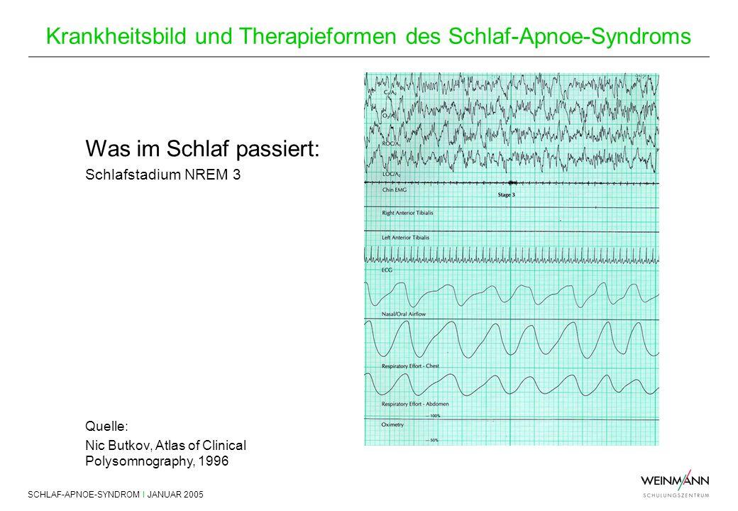 SCHLAF-APNOE-SYNDROM I JANUAR 2005 Krankheitsbild und Therapieformen des Schlaf-Apnoe-Syndroms Was im Schlaf passiert: Schlafstadium NREM 3 Quelle: Ni