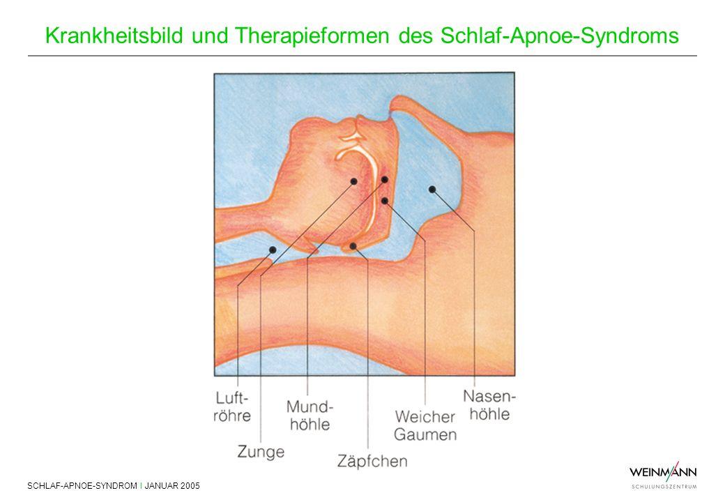 SCHLAF-APNOE-SYNDROM I JANUAR 2005 Krankheitsbild und Therapieformen des Schlaf-Apnoe-Syndroms