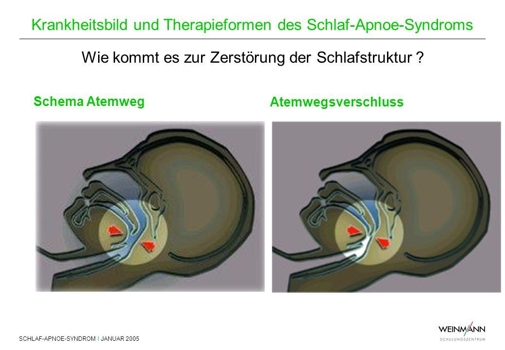 SCHLAF-APNOE-SYNDROM I JANUAR 2005 Krankheitsbild und Therapieformen des Schlaf-Apnoe-Syndroms Wie kommt es zur Zerstörung der Schlafstruktur ? Schema