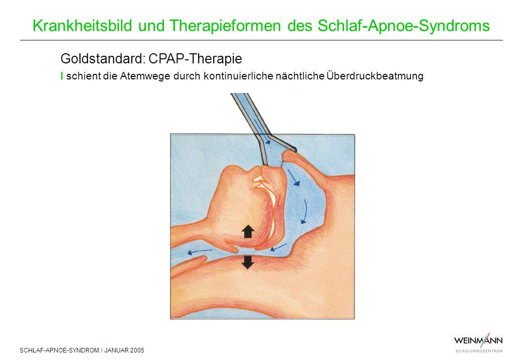 SCHLAF-APNOE-SYNDROM I JANUAR 2005 Krankheitsbild und Therapieformen des Schlaf-Apnoe-Syndroms Goldstandard: CPAP-Therapie I schient die Atemwege durc
