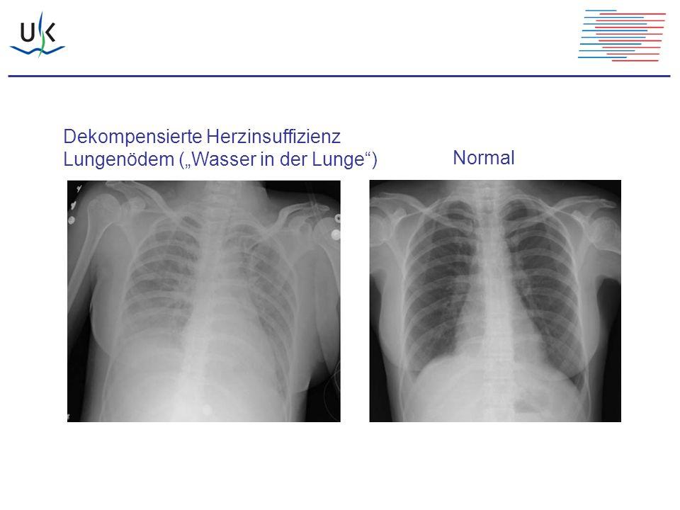 """Normal Dekompensierte Herzinsuffizienz Lungenödem (""""Wasser in der Lunge"""")"""