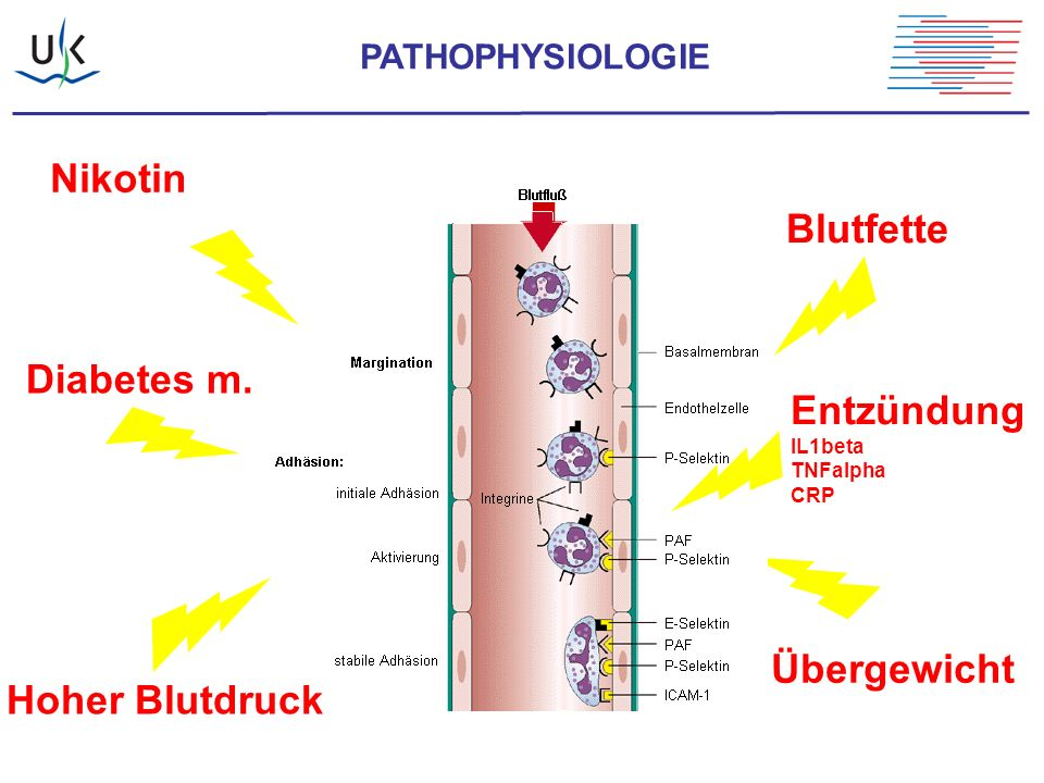 Nikotin Hoher Blutdruck Übergewicht Diabetes m. Blutfette Entzündung IL1beta TNFalpha CRP PATHOPHYSIOLOGIE
