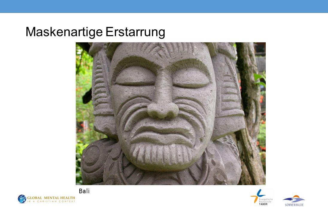 Maskenartige Erstarrung Bali
