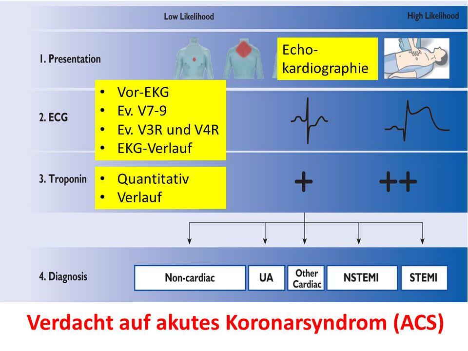 Verdacht auf akutes Koronarsyndrom (ACS) Vor-EKG Ev.
