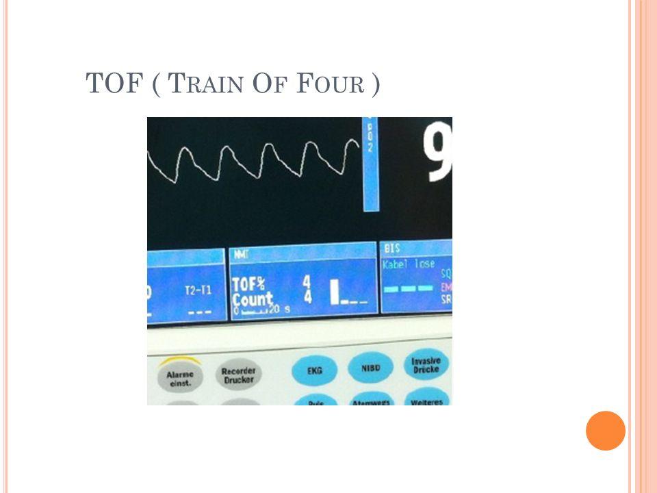 IPS - INSPIRATORY PRESSURE SUPPORT inspiratorisches Druckniveau Trigger ( Druck 1-2 mbar unter PEEP oder Flow 2-4 l/min) Sauerstoffkonzentration Ggf.
