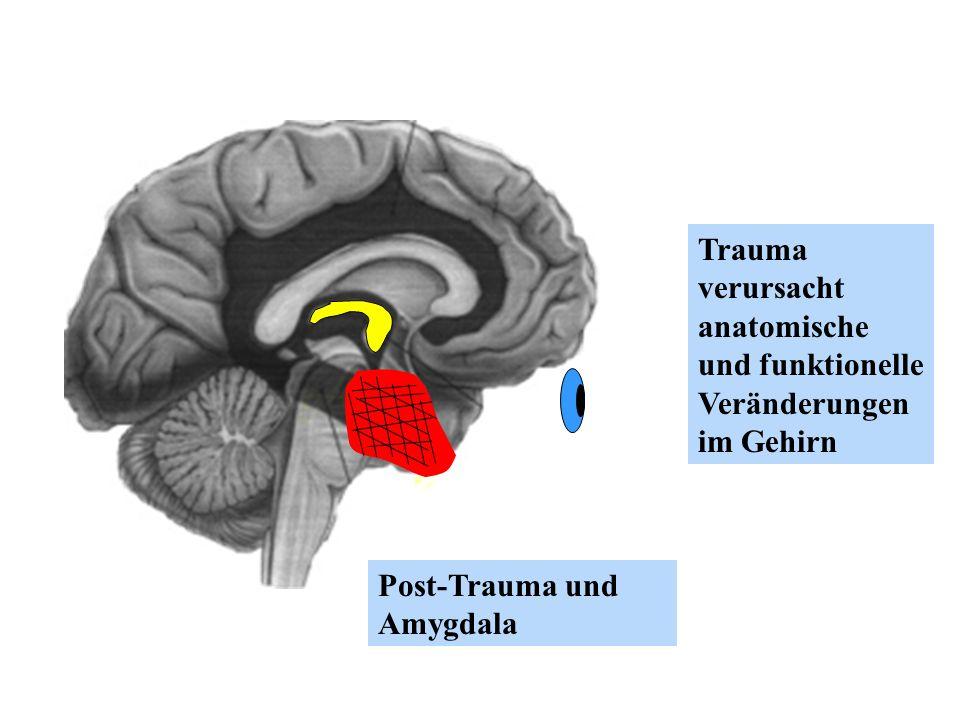Post-Trauma und Amygdala Trauma verursacht anatomische und funktionelle Veränderungen im Gehirn