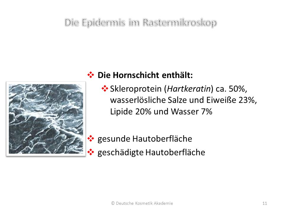 ❖ Die Hornschicht enthält: ❖ Skleroprotein (Hartkeratin) ca. 50%, wasserlösliche Salze und Eiweiße 23%, Lipide 20% und Wasser 7% ❖ gesunde Hautoberflä