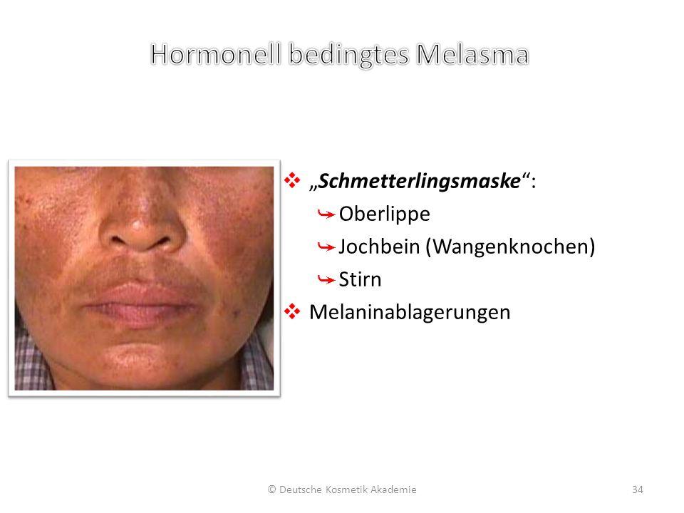 """❖ """"Schmetterlingsmaske"""": ➥ Oberlippe ➥ Jochbein (Wangenknochen) ➥ Stirn ❖ Melaninablagerungen © Deutsche Kosmetik Akademie34"""