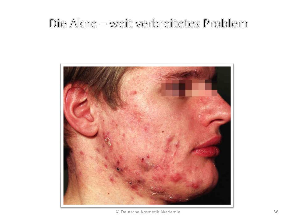 © Deutsche Kosmetik Akademie36