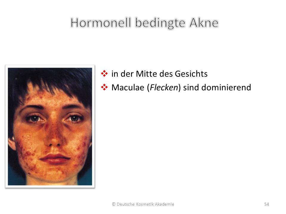 ❖ in der Mitte des Gesichts ❖ Maculae (Flecken) sind dominierend © Deutsche Kosmetik Akademie54