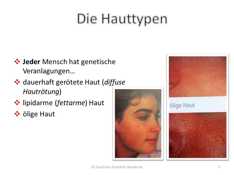 ❖ Jeder Mensch hat genetische Veranlagungen… ❖ dauerhaft gerötete Haut (diffuse Hautrötung) ❖ lipidarme (fettarme) Haut ❖ ölige Haut © Deutsche Kosmet
