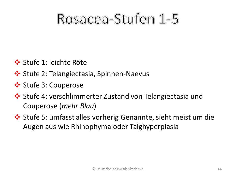 ❖ Stufe 1: leichte Röte ❖ Stufe 2: Telangiectasia, Spinnen-Naevus ❖ Stufe 3: Couperose ❖ Stufe 4: verschlimmerter Zustand von Telangiectasia und Coupe