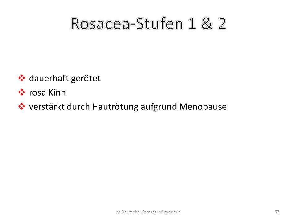 ❖ dauerhaft gerötet ❖ rosa Kinn ❖ verstärkt durch Hautrötung aufgrund Menopause © Deutsche Kosmetik Akademie67