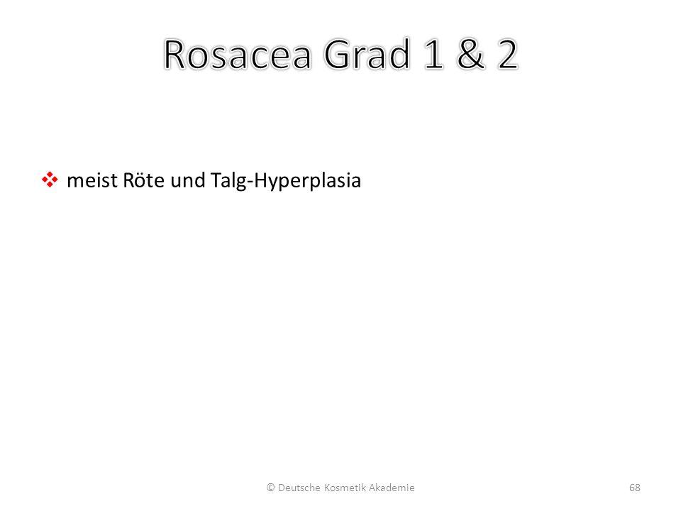 ❖ meist Röte und Talg-Hyperplasia © Deutsche Kosmetik Akademie68