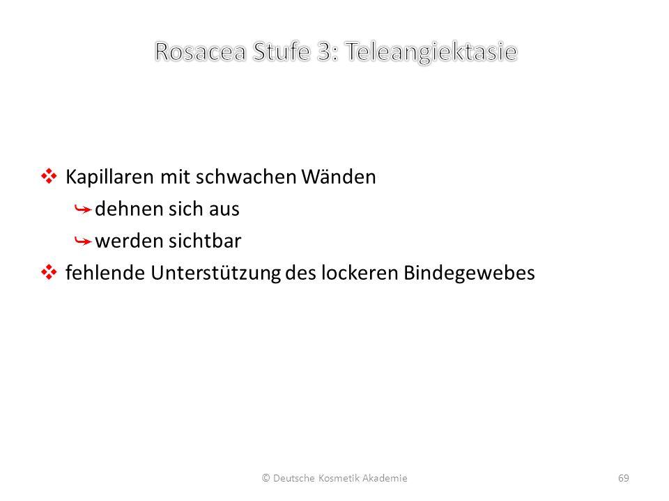 ❖ Kapillaren mit schwachen Wänden ➥ dehnen sich aus ➥ werden sichtbar ❖ fehlende Unterstützung des lockeren Bindegewebes © Deutsche Kosmetik Akademie6