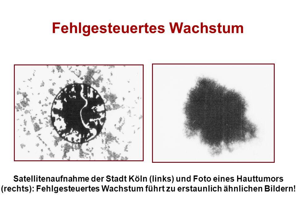Fehlgesteuertes Wachstum Satellitenaufnahme der Stadt Köln (links) und Foto eines Hauttumors (rechts): Fehlgesteuertes Wachstum führt zu erstaunlich ä