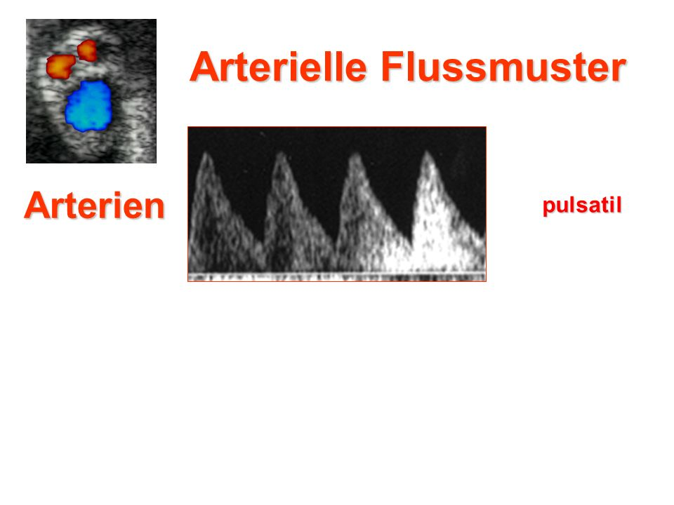 Arterien pulsatil Arterielle Flussmuster