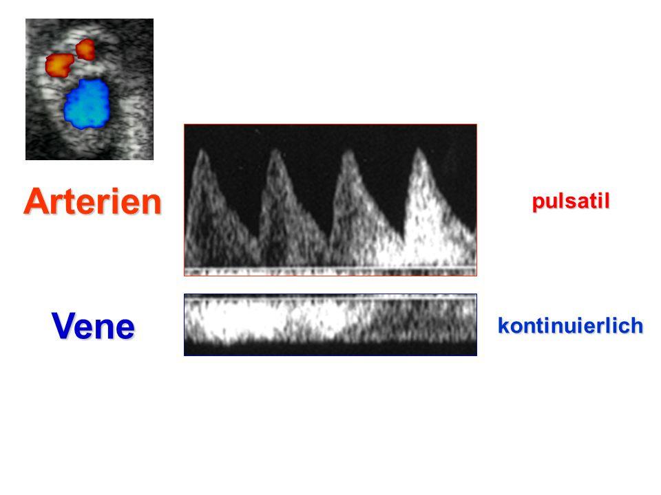 Arterien pulsatil Vene kontinuierlich