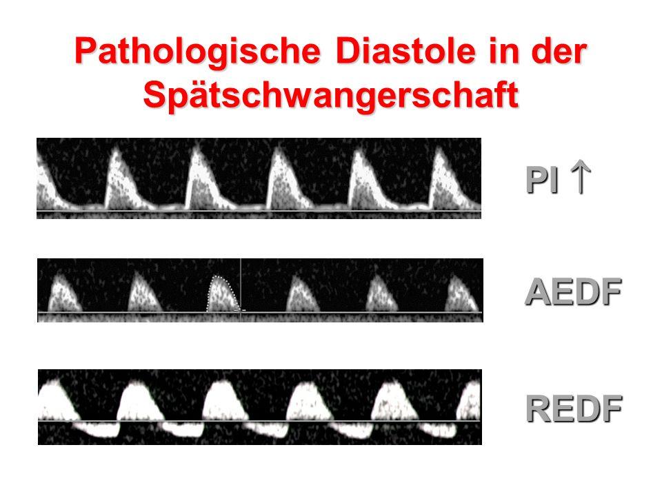 Pathologische Diastole in der Spätschwangerschaft PI  AEDF REDF