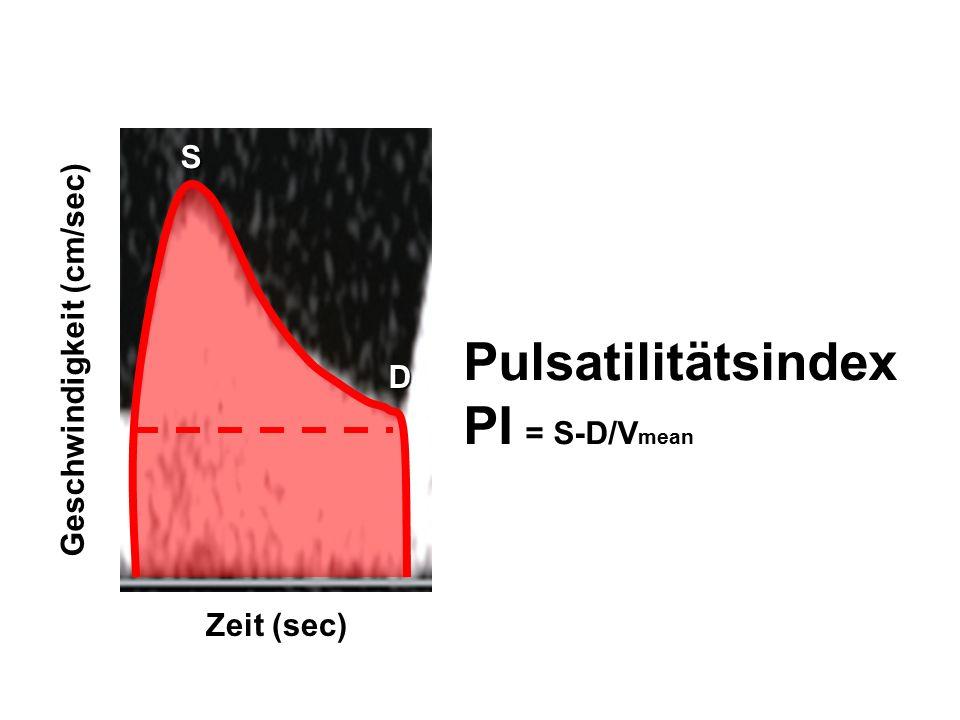Zeit (sec) Geschwindigkeit (cm/sec) Pulsatilitätsindex PI = S-D/V mean S D