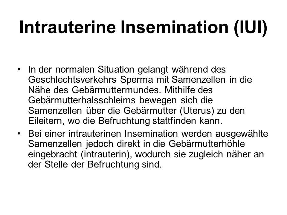 Intrauterine Insemination (IUI) In der normalen Situation gelangt während des Geschlechtsverkehrs Sperma mit Samenzellen in die Nähe des Gebärmuttermundes.