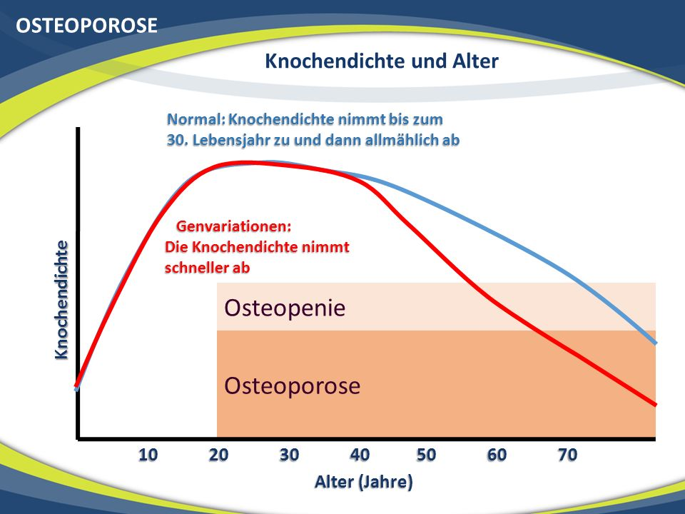 OSTEOPOROSE Knochendichte und Alter Osteoporose OsteopenieKnochendichte Alter (Jahre) 10 20 30 40 50 60 70 Normal: Knochendichte nimmt bis zum Normal: Knochendichte nimmt bis zum 30.
