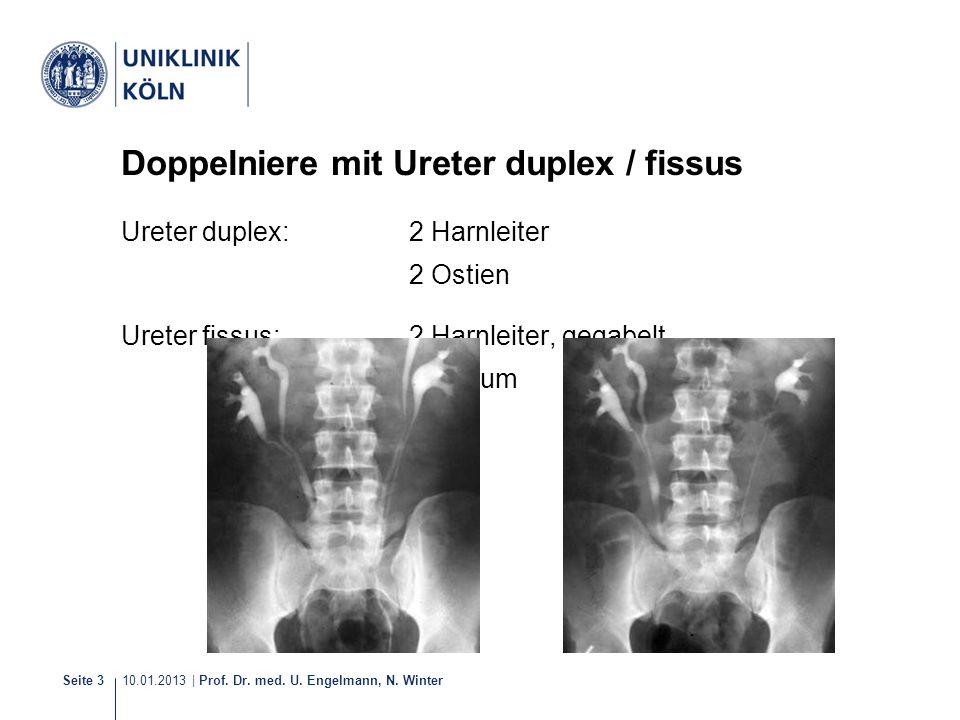 10.01.2013 | Prof. Dr. med. U. Engelmann, N. Winter Seite 3 Doppelniere mit Ureter duplex / fissus Ureter duplex: 2 Harnleiter 2 Ostien Ureter fissus: