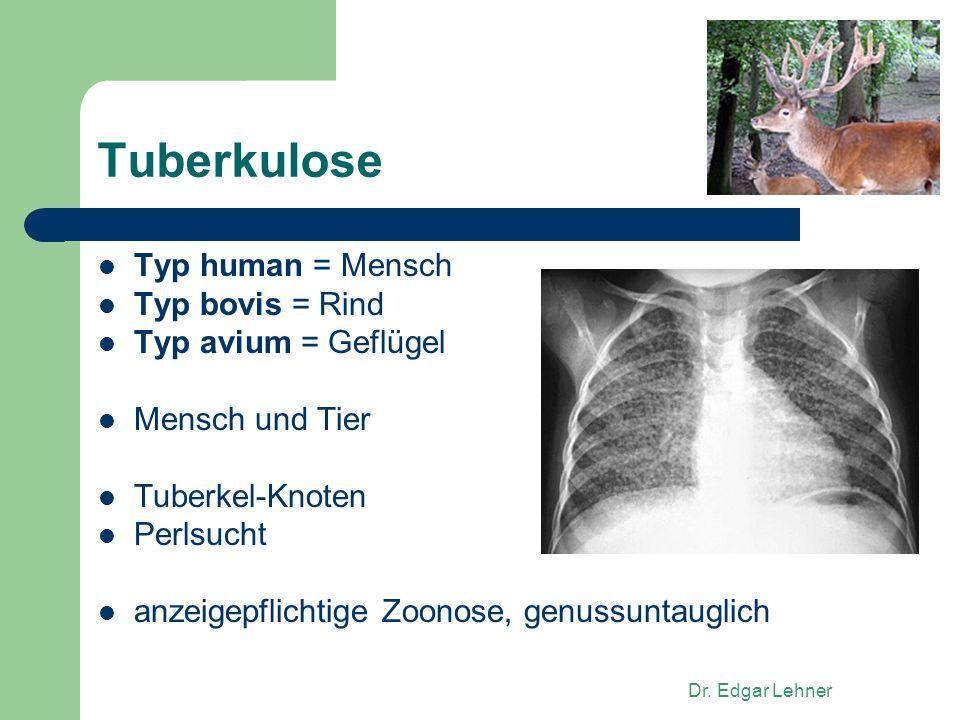 Dr. Edgar Lehner Tuberkulose Typ human = Mensch Typ bovis = Rind Typ avium = Geflügel Mensch und Tier Tuberkel-Knoten Perlsucht anzeigepflichtige Zoon
