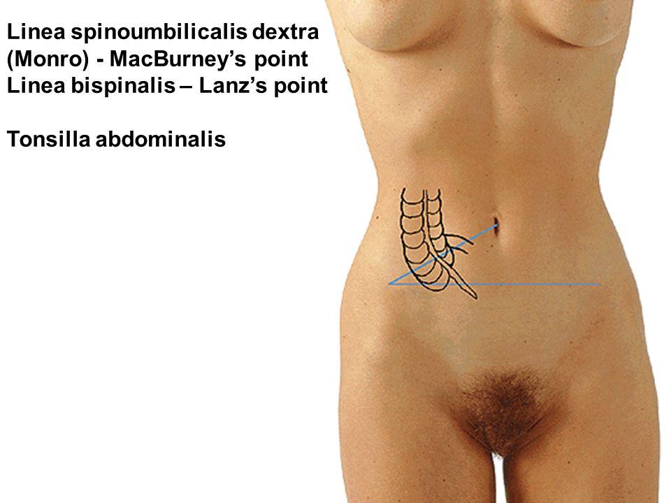 Linea spinoumbilicalis dextra (Monro) - MacBurney's point Linea bispinalis – Lanz's point Tonsilla abdominalis