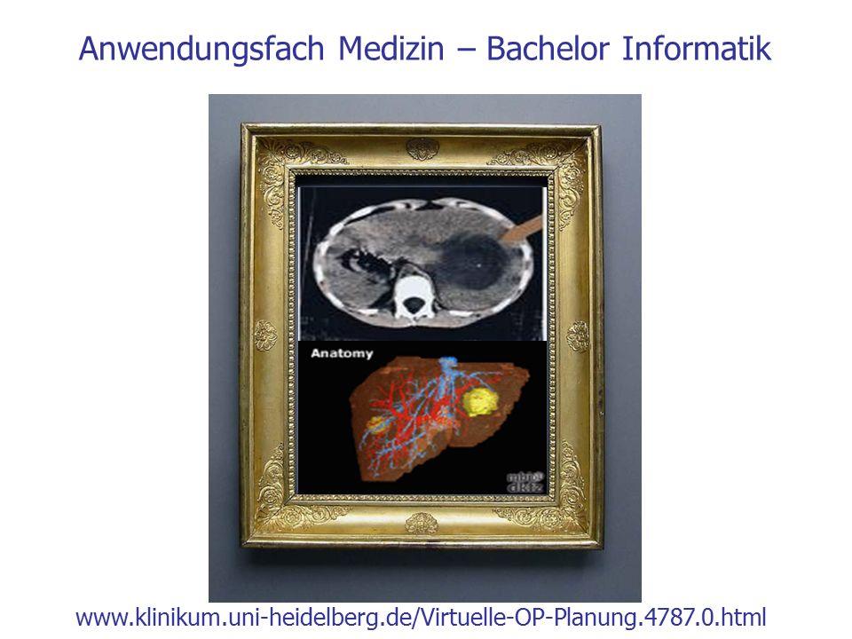 Anwendungsfach Medizin – Bachelor Informatik www.klinikum.uni-heidelberg.de/Virtuelle-OP-Planung.4787.0.html
