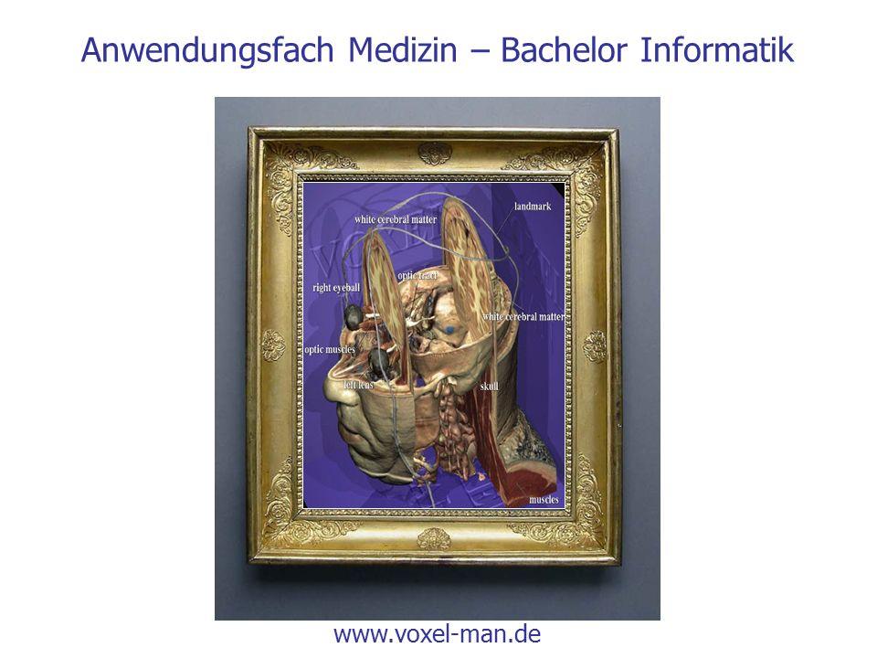 Anwendungsfach Medizin – Bachelor Informatik www.voxel-man.de