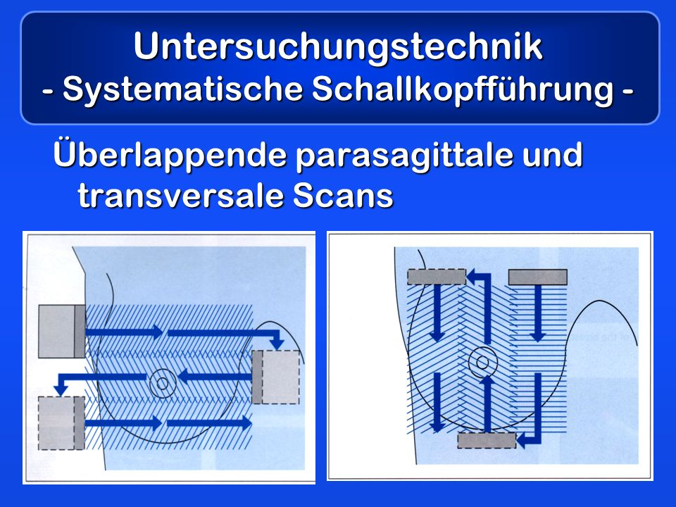 Untersuchungstechnik - Systematische Schallkopfführung - Überlappende parasagittale und transversale Scans