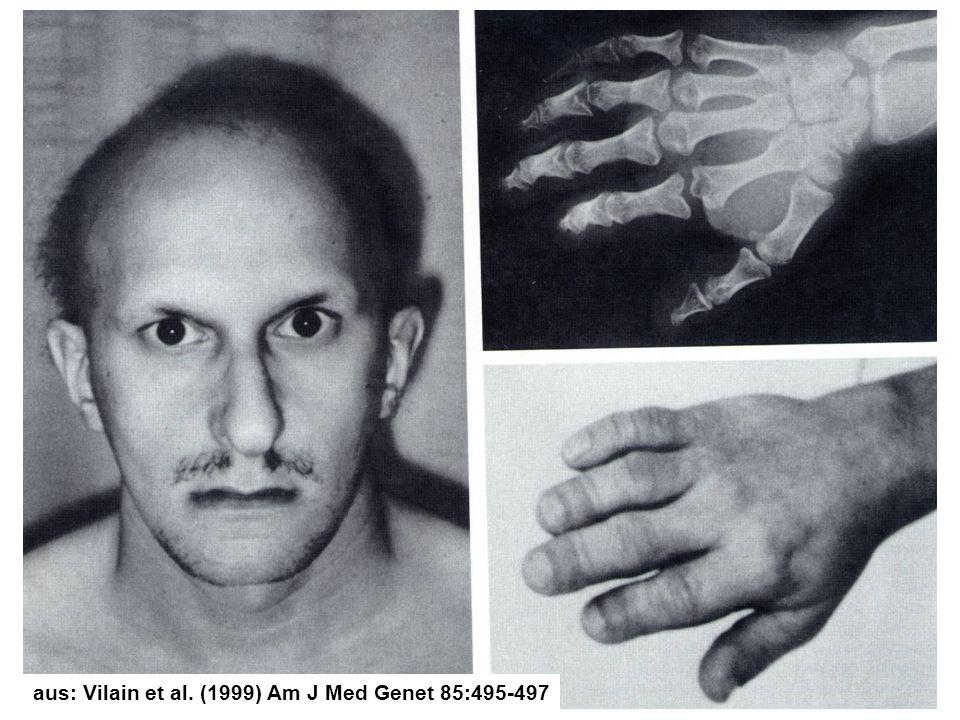aus: Vilain et al. (1999) Am J Med Genet 85:495-497