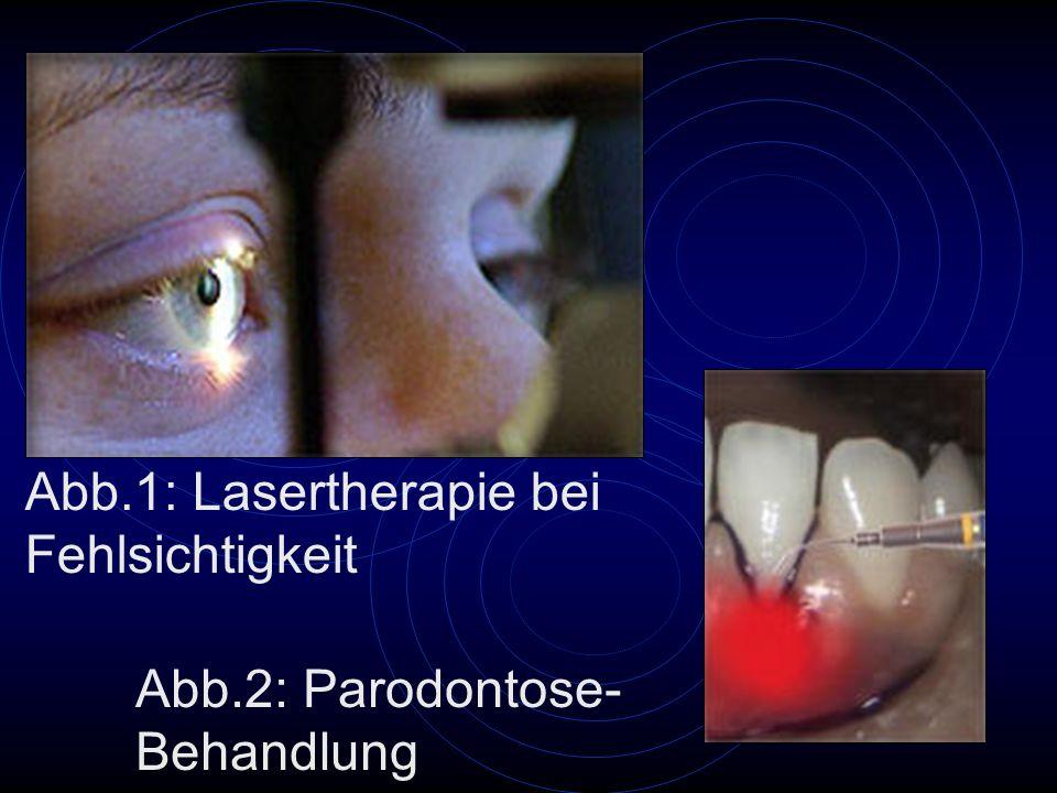 Abb.1: Lasertherapie bei Fehlsichtigkeit Abb.2: Parodontose- Behandlung