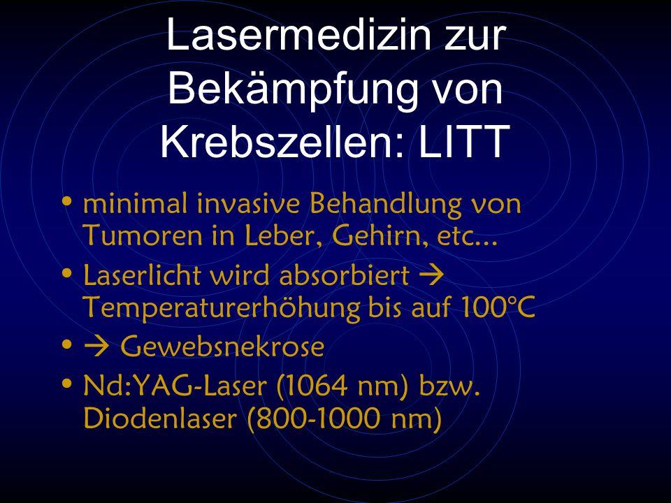 Lasermedizin zur Bekämpfung von Krebszellen: LITT minimal invasive Behandlung von Tumoren in Leber, Gehirn, etc... Laserlicht wird absorbiert  Temper
