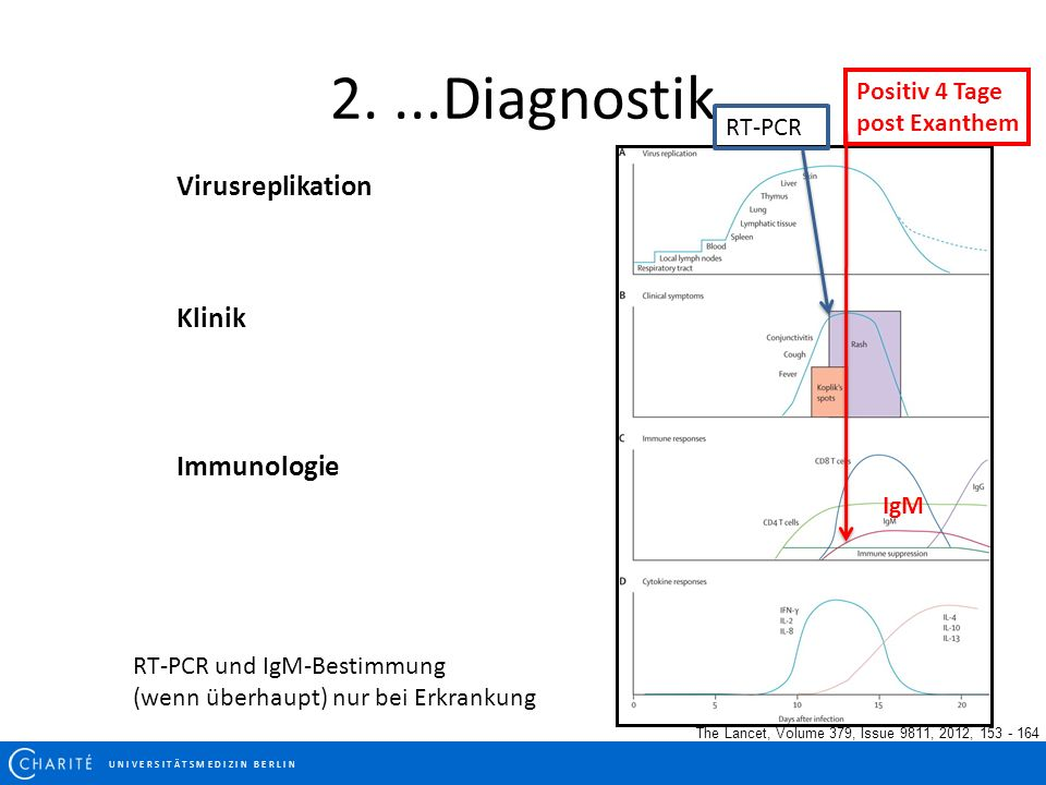 2....Diagnostik The Lancet, Volume 379, Issue 9811, 2012, 153 - 164 IgM Positiv 4 Tage post Exanthem Virusreplikation Klinik Immunologie RT-PCR RT-PCR