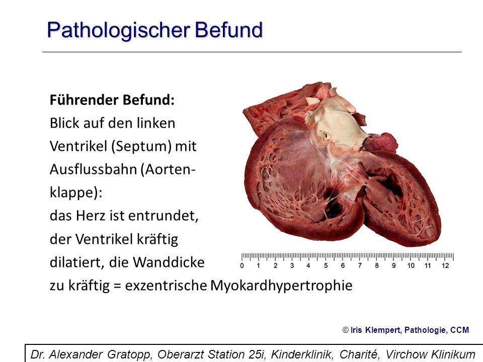 Pathologischer Befund Führender Befund: Blick auf den linken Ventrikel (Septum) mit Ausflussbahn (Aorten- klappe): das Herz ist entrundet, der Ventrik