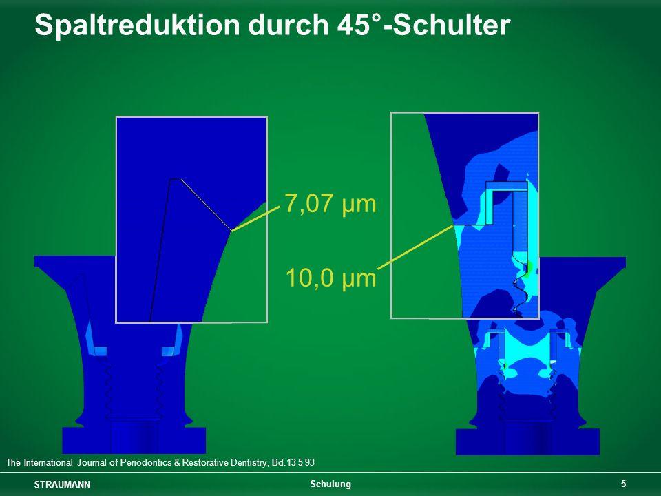 STRAUMANN 6 Schulung Schraubkonus / Straumann ® CrossFit TM