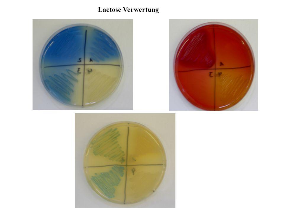 Alternative lactose catabolic pathways in Staphylococci.