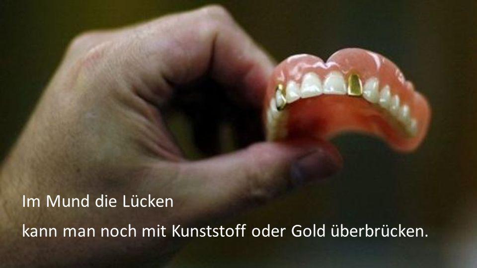 Im Mund die Lücken kann man noch mit Kunststoff oder Gold überbrücken.