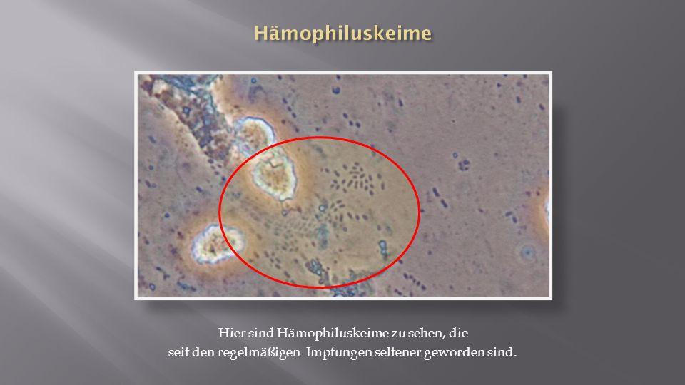 Hier sind Hämophiluskeime zu sehen, die seit den regelmäßigen Impfungen seltener geworden sind.