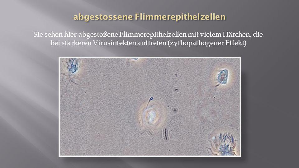 Sie sehen hier abgestoßene Flimmerepithelzellen mit vielem Härchen, die bei stärkeren Virusinfekten auftreten (zythopathogener Effekt)